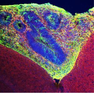 Органоид человеческого мозга в мышином мозгу